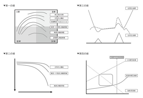 4つの線 白紙グラフ